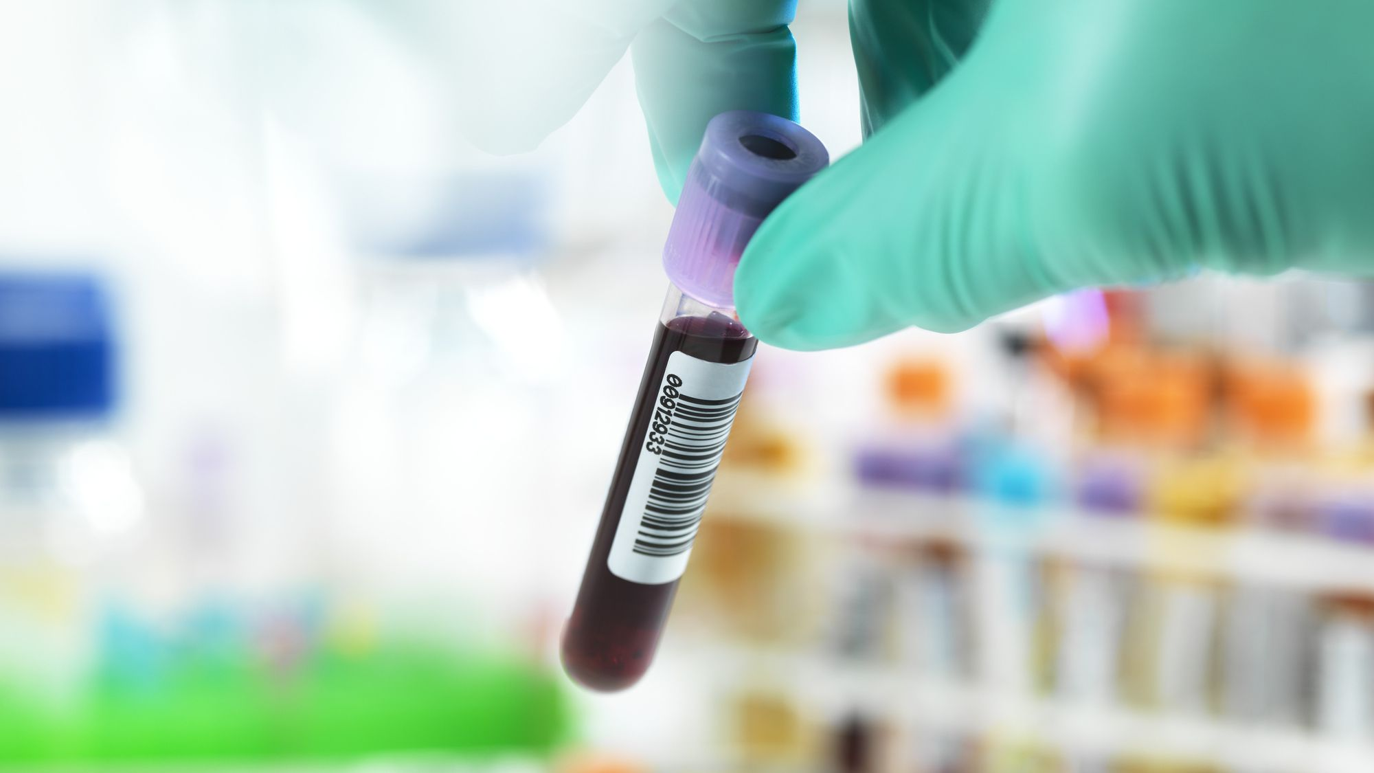 Understanding Common Blood Tests and What They Mean