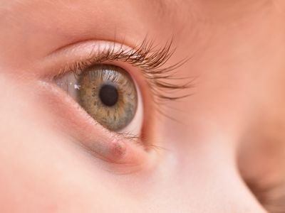 eyelid tumor