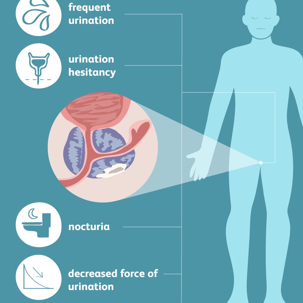 prostatitis symptoms vs prostate cancer symptoms)