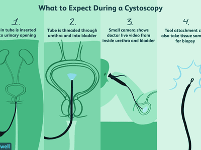 what to expect during a cystoscopy