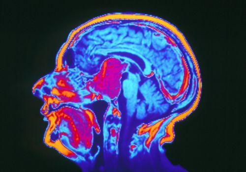 MRI scan showing pituitary tumor