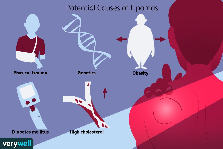 Potential Causes of Lipomas