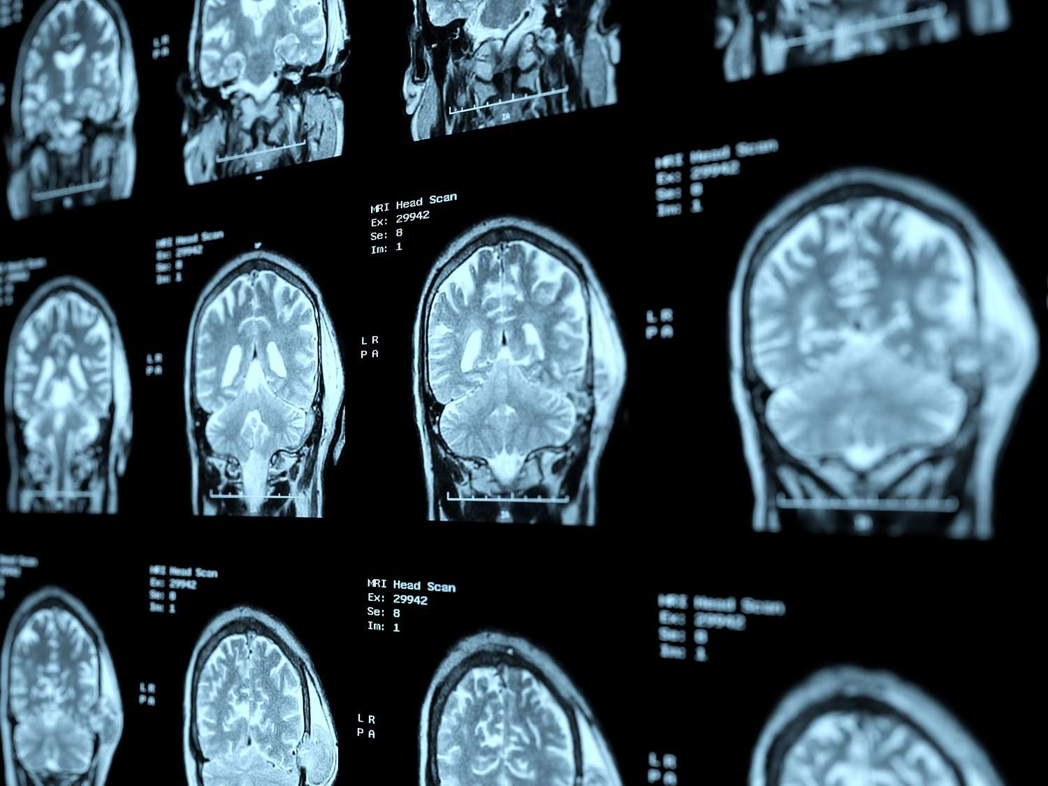 A series of MRI images of the brain