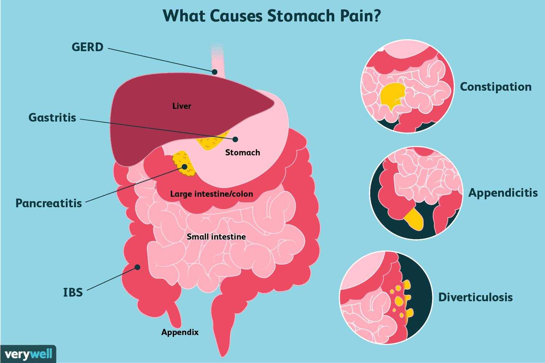 Ten Causes Of Epigastric Pain