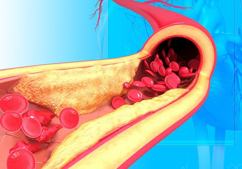 Illustration of atherosclerosis in a vein