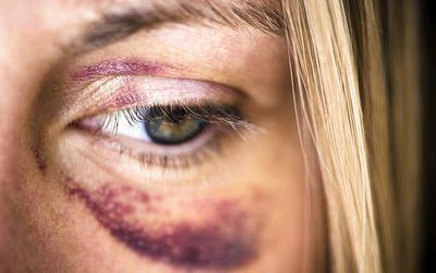 Image result for blue eye bruise