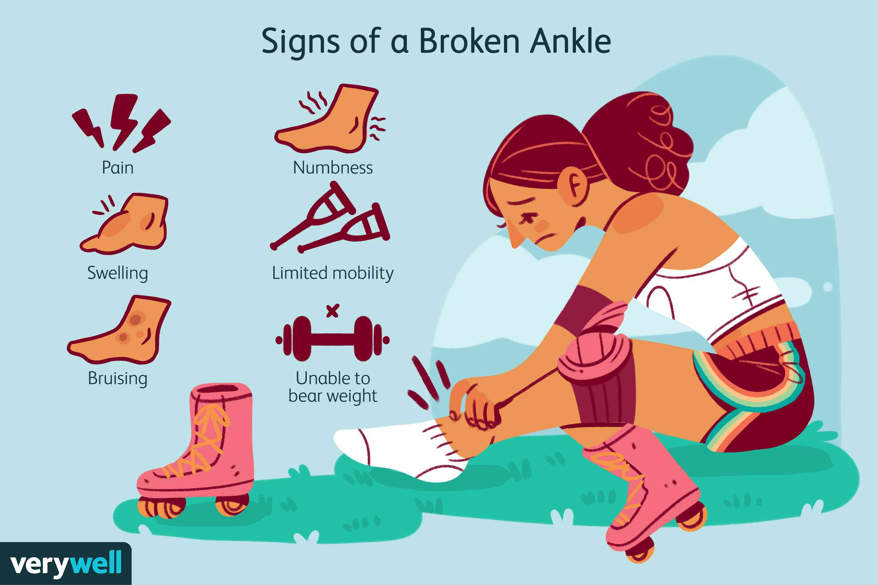 Signs of a Broken Ankle