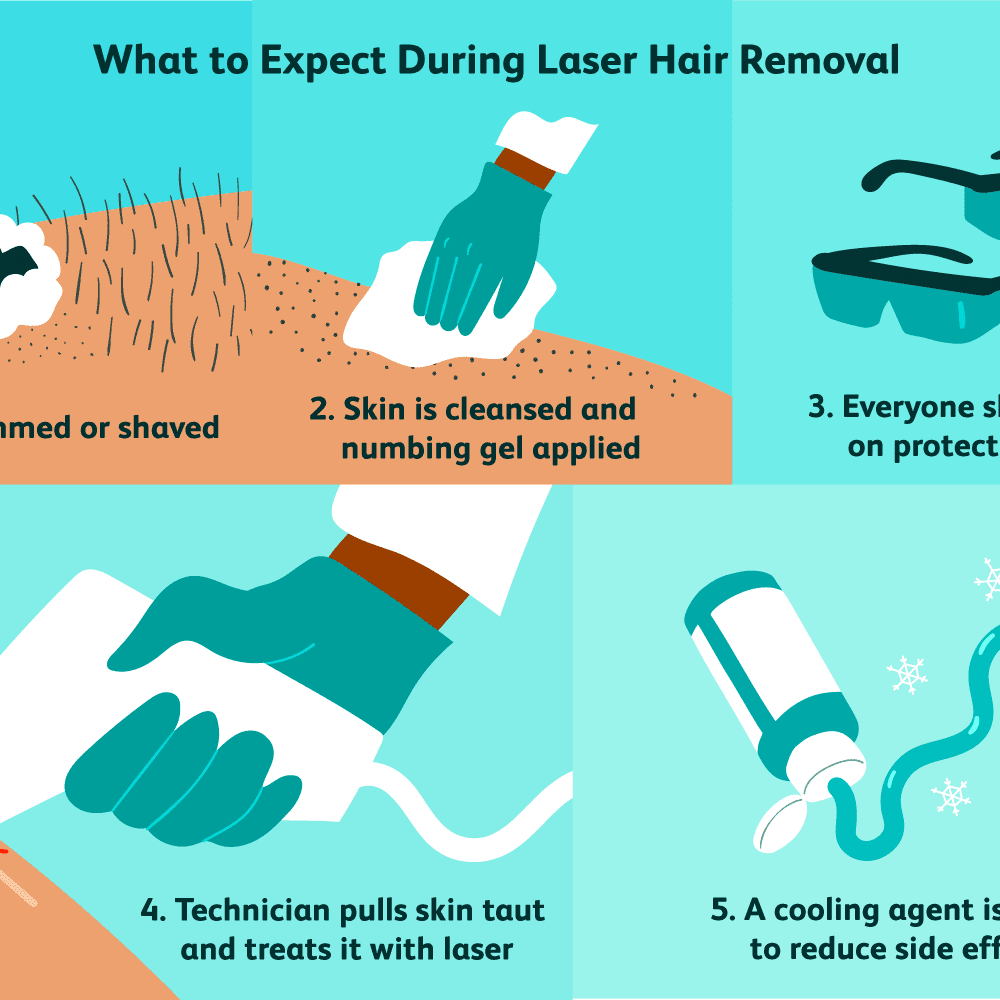 Laser Hair Removal Benefits Safety What To Expect