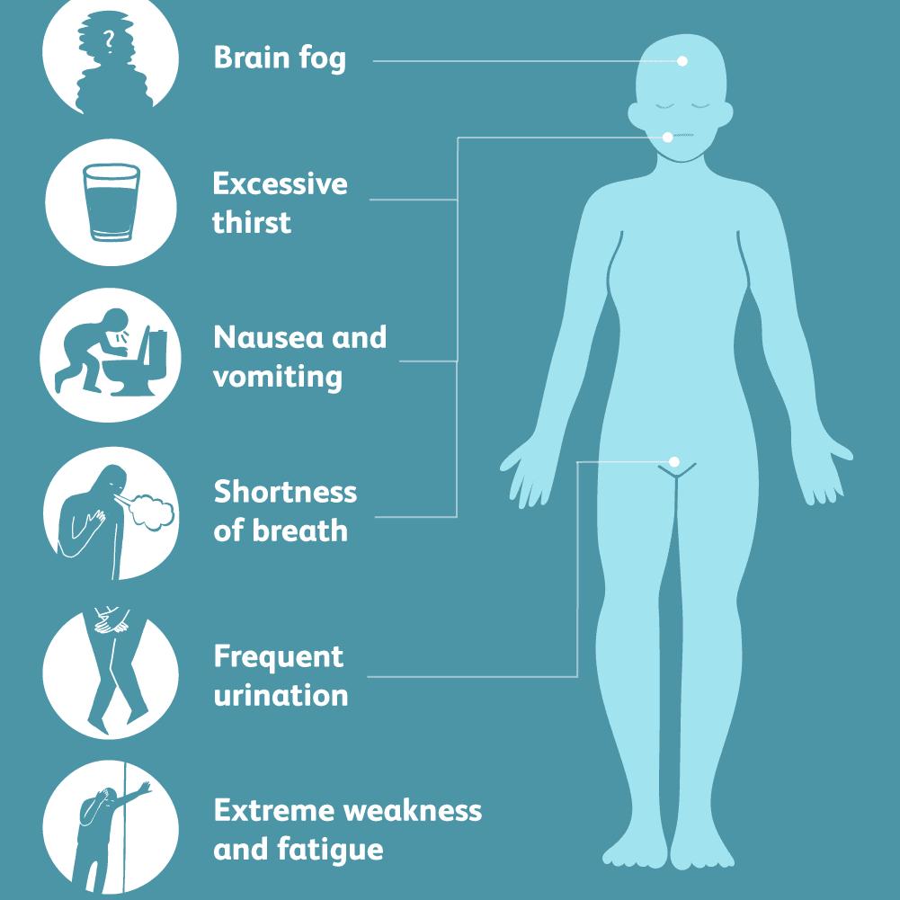Symptoms of multiple myeloma