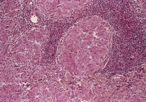 Microscopic view of a granuloma -- a circular cluster surrounded by numerous small cells with dark purple nuclei (lymphocytes).