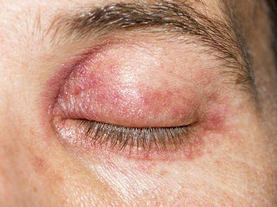 eczema or dermatitis on the eyelid