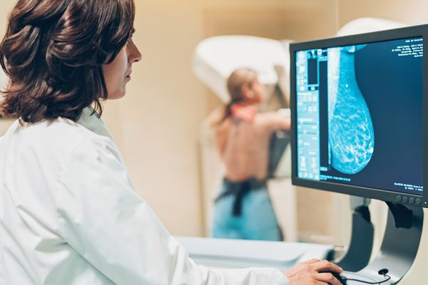 a doctor screening for triple-negative breast cancer