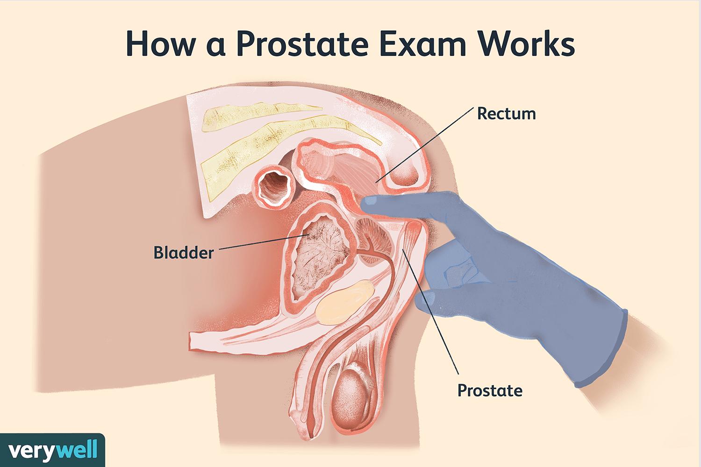 dre prostate A prosztatitis szexuálisan továbbítható