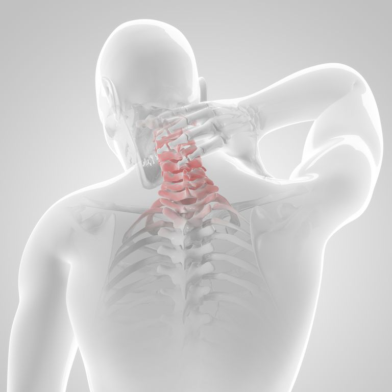Neck pain sometimes means surgery.