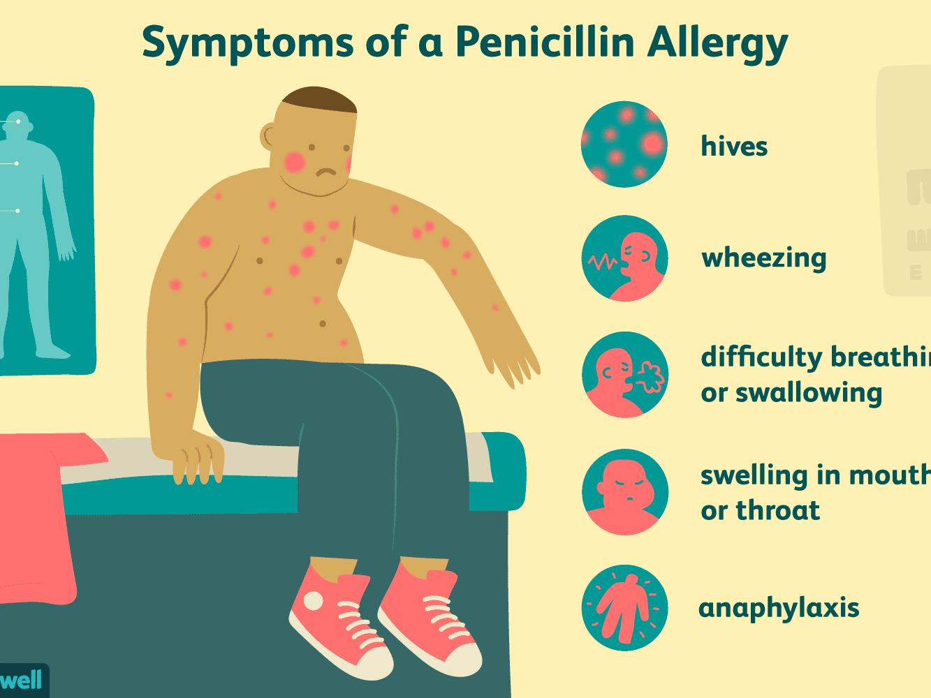 steroid shot for allergic reaction to antibiotics