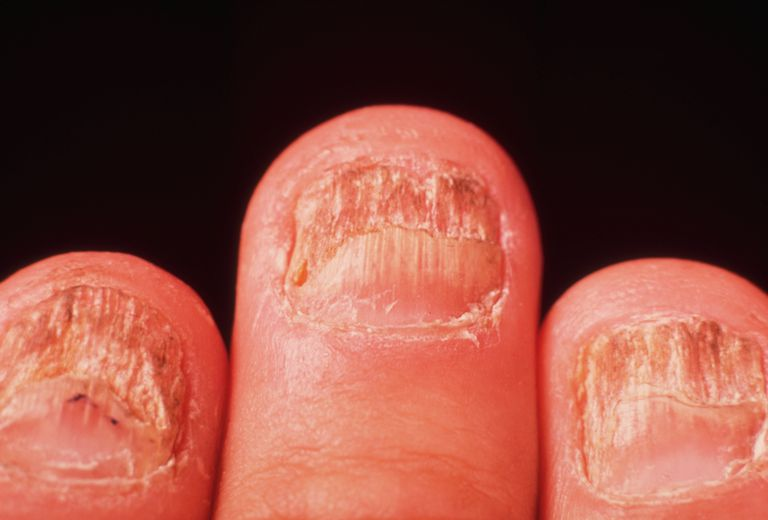 Fungal Infections and Yeast Infections