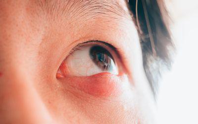man with hordeolum ill eye