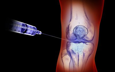 Hyaluronan Injections for Knee Arthritis