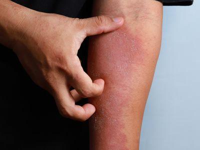eczema of the arm
