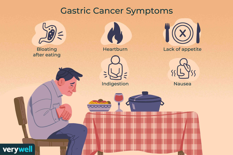 Gastric Cancer Symptoms