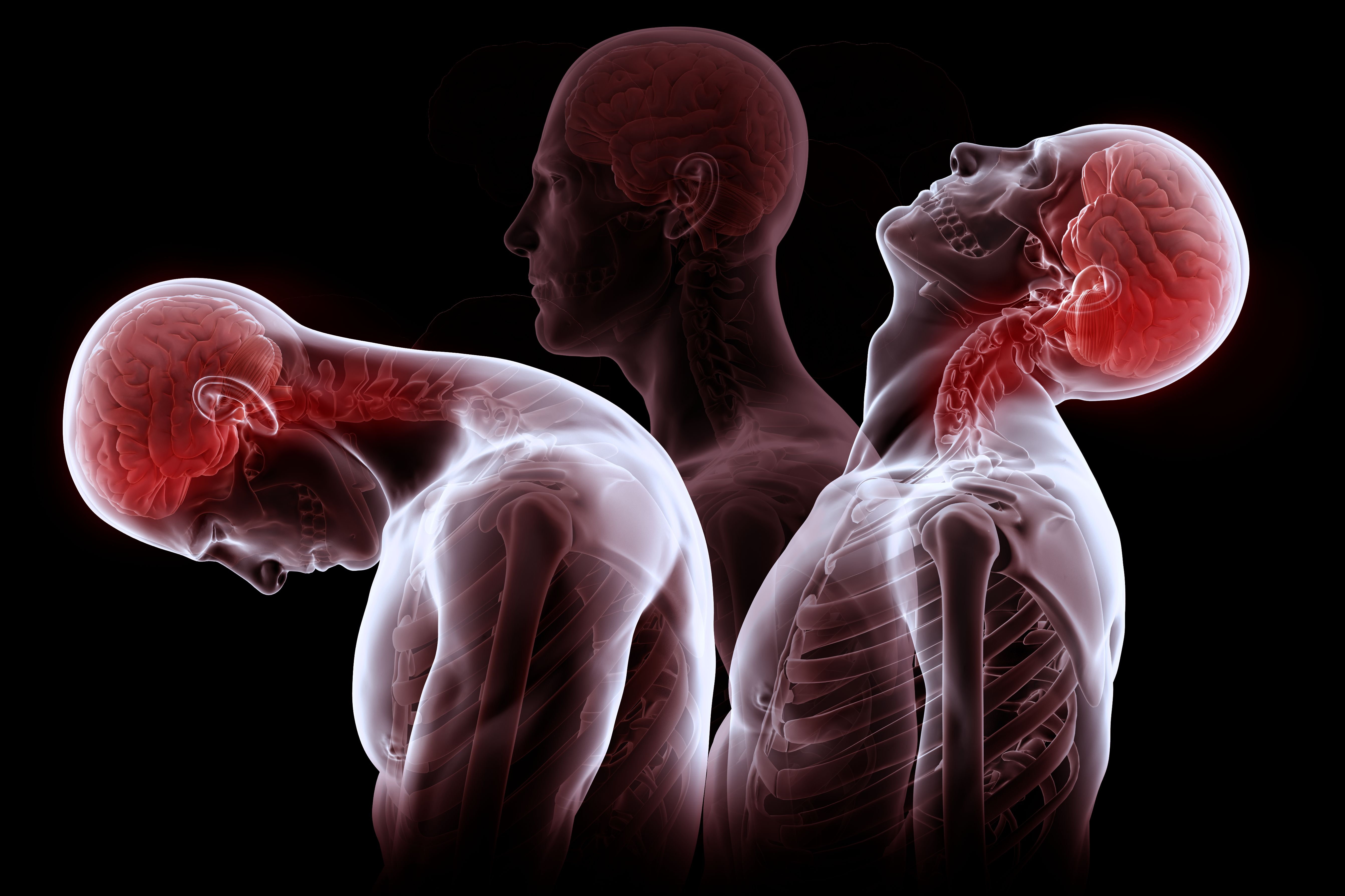 Whiplash illustration showing how the neck moves when this damage occurs