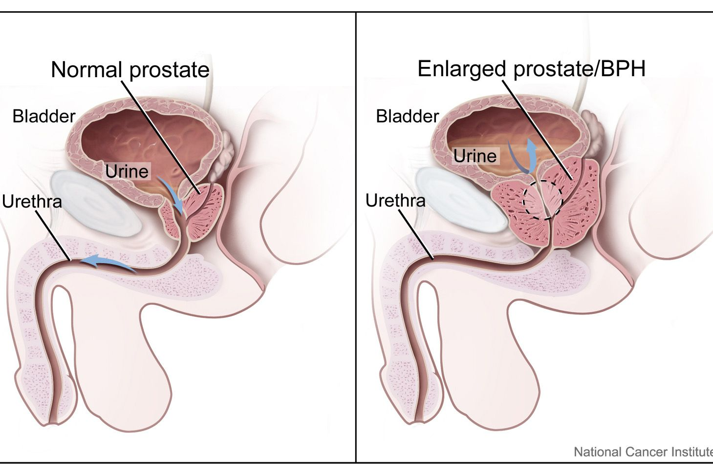 [Health behavior of Hungarian prostate cancer patients]