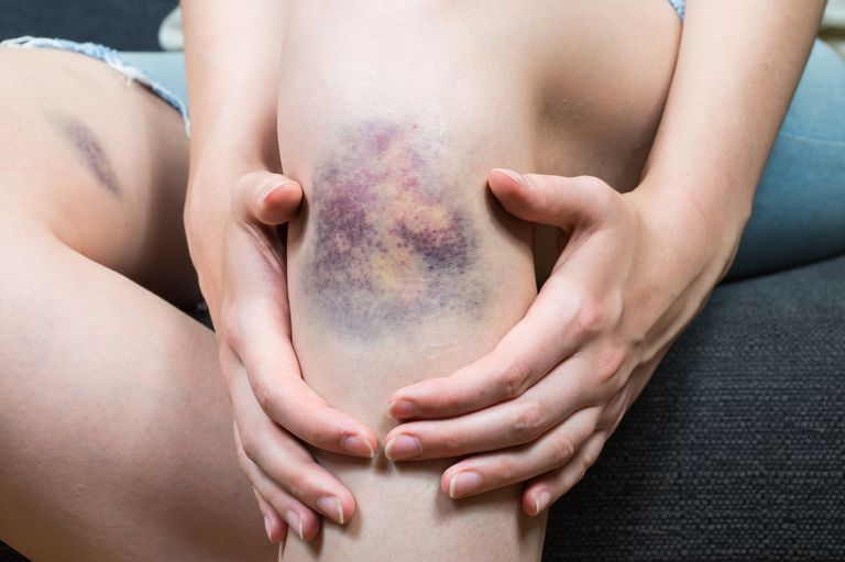 Large bruise on a woman's knee