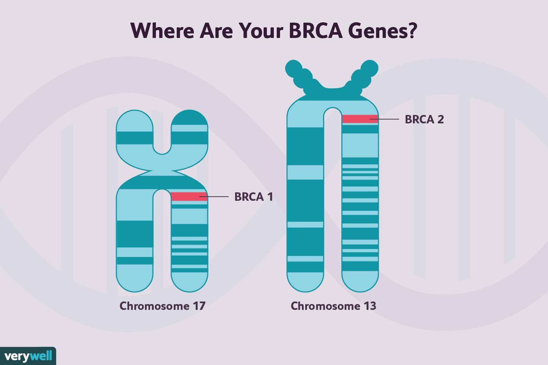 Non Brca Gene Mutations That Raise Breast Cancer Risk