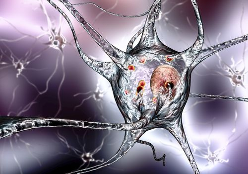 Nerve Cells in Parkinson's Disease