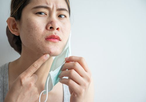 woman worrying about acne from face mask.