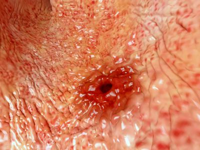 Close-up view of a peptic ulcer