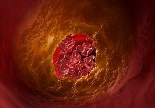 Illustration of a blocked artery - stock illustration
