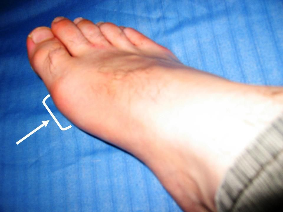 Sesamoid Fractures Are Subtle and Can Happen Without Obvious Injury
