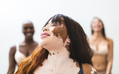 A woman with vitiligo is in focus in the foreground, closing her eyes and smiling. Two smiling women stand out of focus in the background.