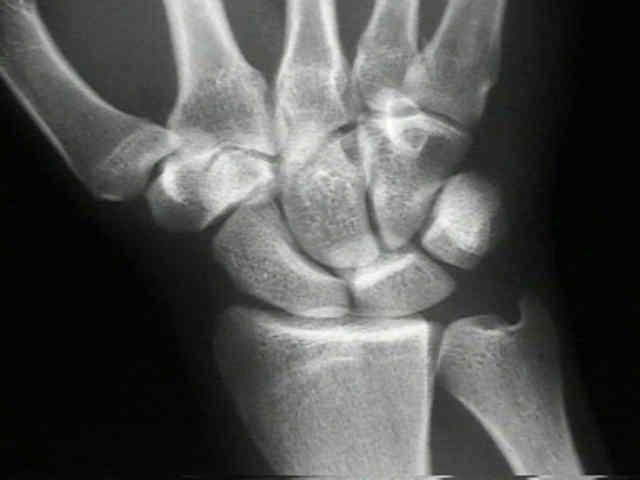 os scaphoideum fracture
