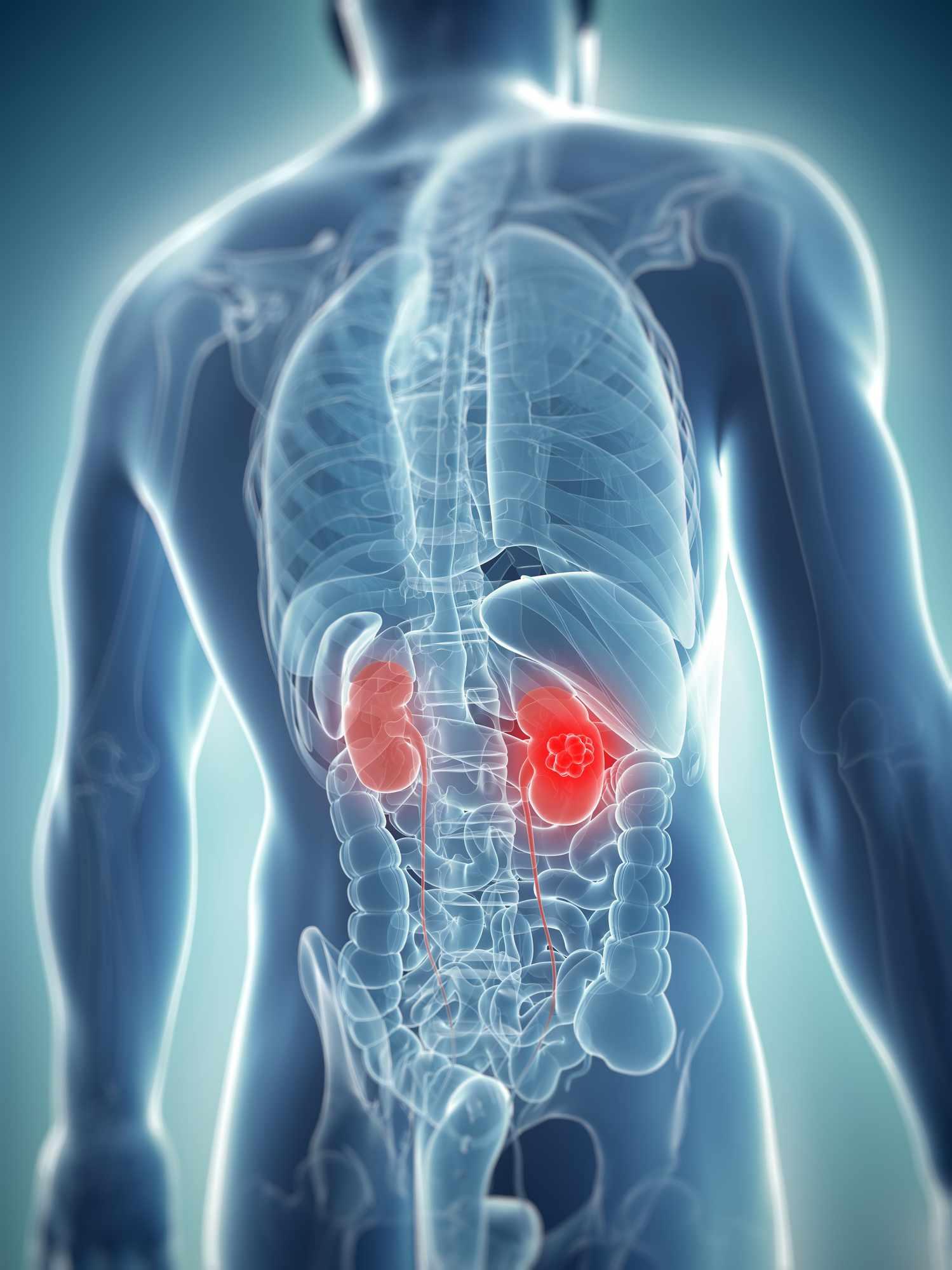 Kidney cancer, artwork