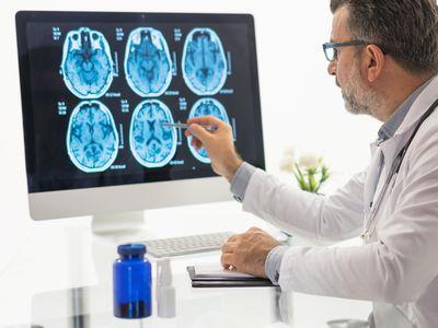 Males doctor examining brain MR