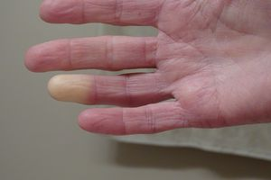 Raynaud's syndrome is part of CREST syndrome