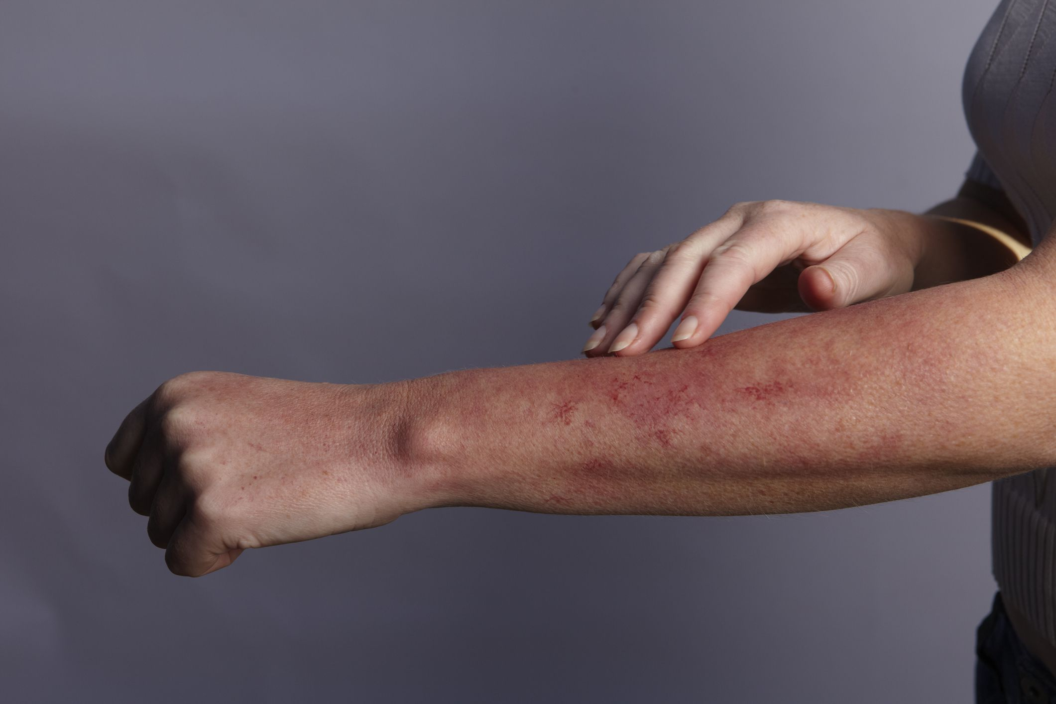 Hand touching a rash on the arm