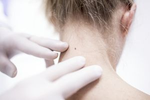 The back of a white, blonde woman's neck with gloves of a healthcare provider examining a mole.