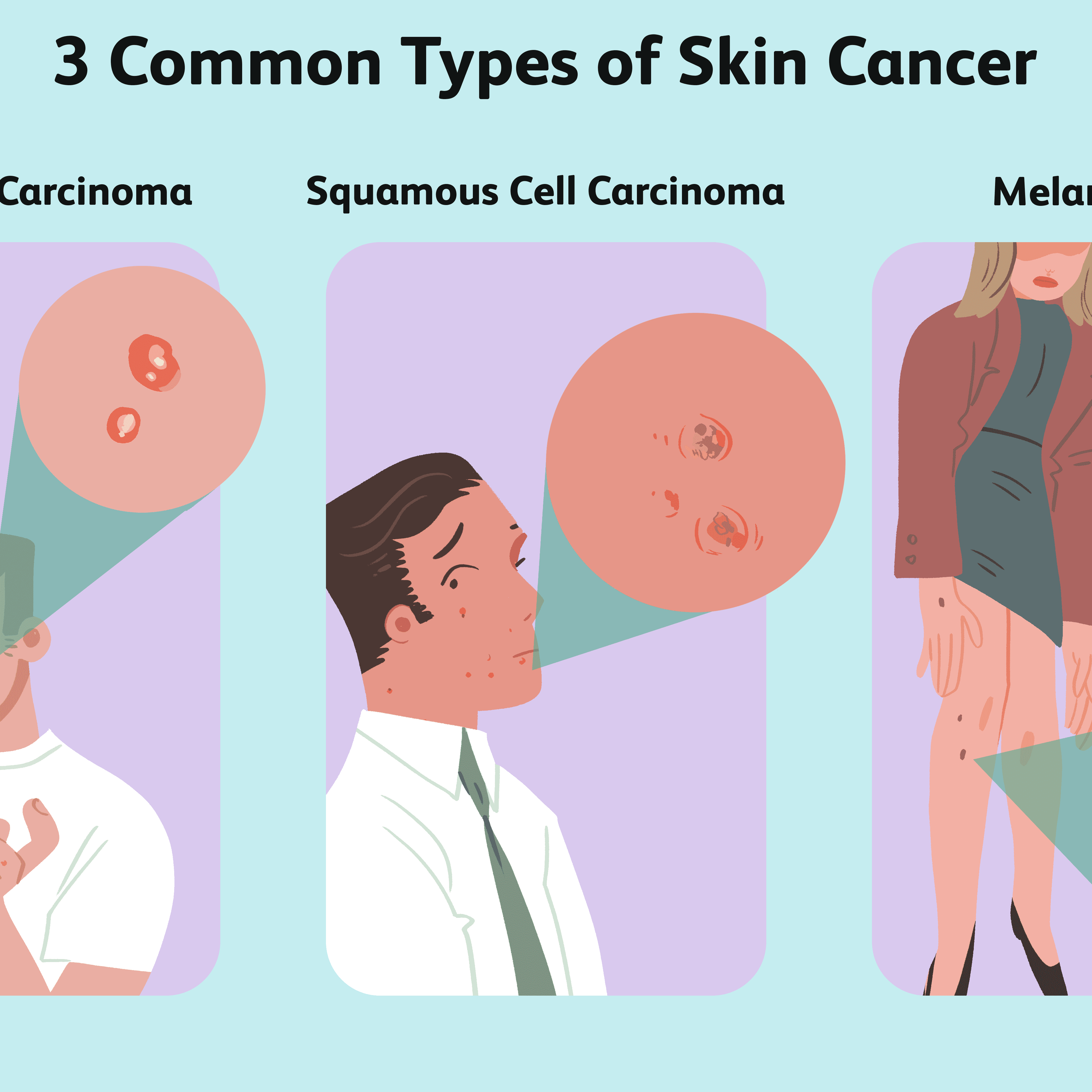 Skin Cancer Overview And More