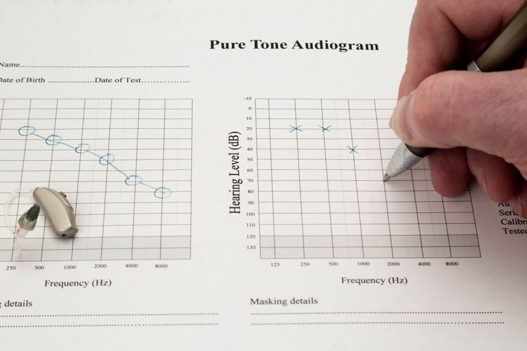 Audiogram Being Marked