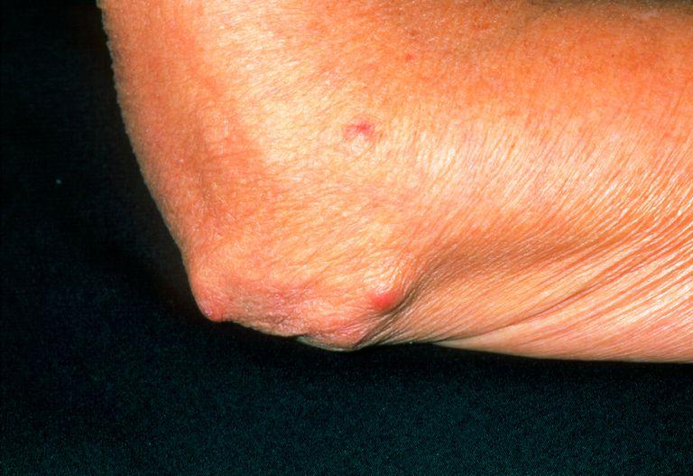 Rheumatoid arthritis nodules