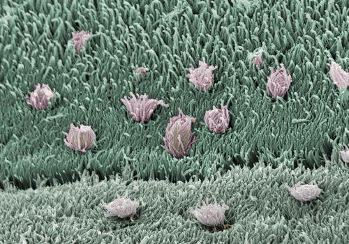 tapeworms closeup