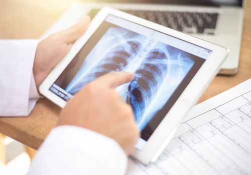 closeup of a doctor sitting at his office desk observing a chest radiograph in a tablet computer