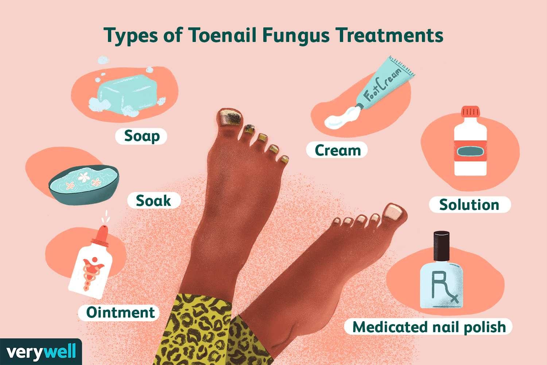 The 9 Best Toenail Fungus Treatments of 9