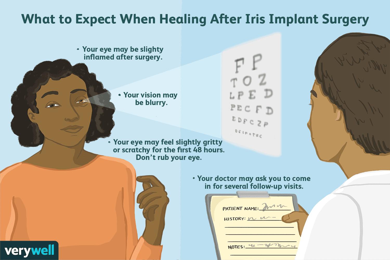 Iris Implant Surgery