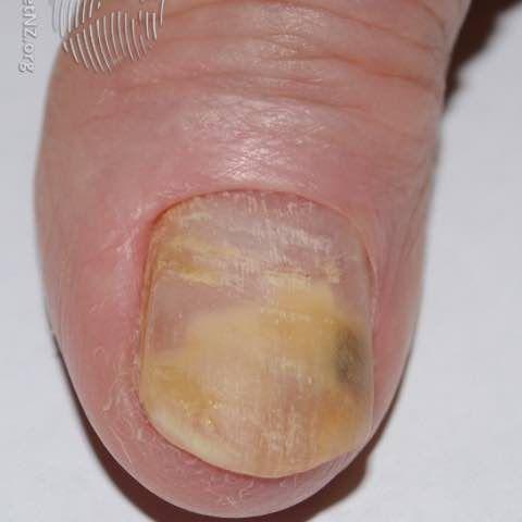 onychomycosis causing onycholysis