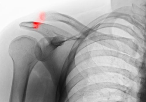 An X-ray of a separated shoulder.