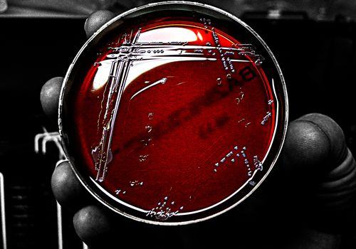 Petri dish with a culture of Staphylococcus aureus bacteria
